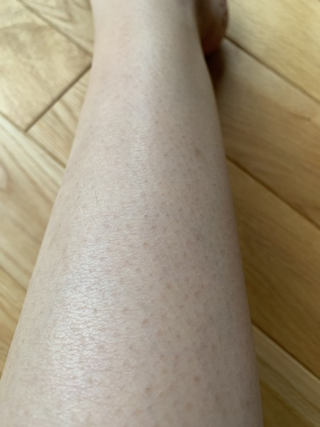 ミュゼのひざ下の効果(6回目)
