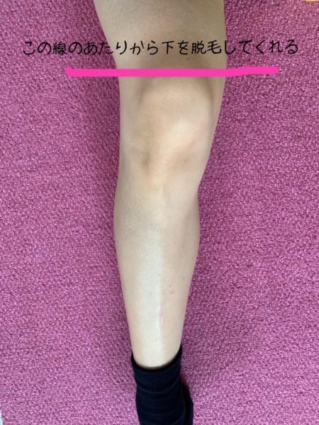 ミュゼのひざ下脱毛の範囲