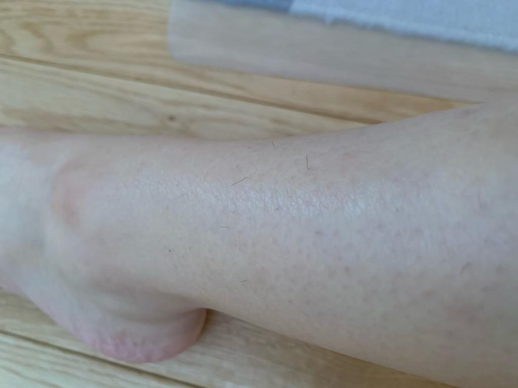 湘南美容外科の脱毛効果(ひざ下)
